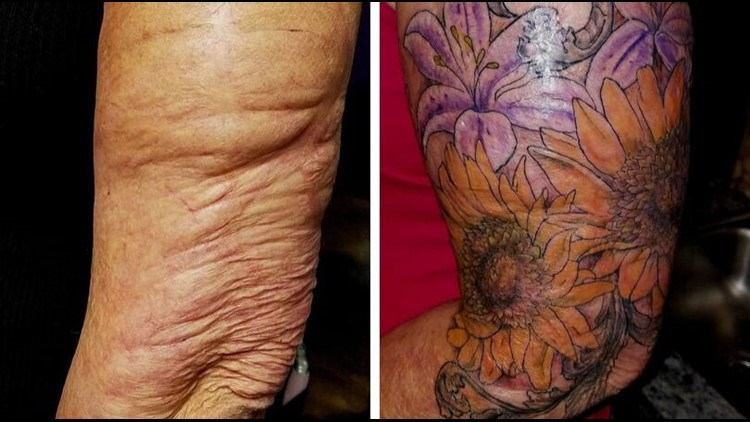 Tattooist Helps Survivors Heal By Covering Scars With Artwork Wfaa Com