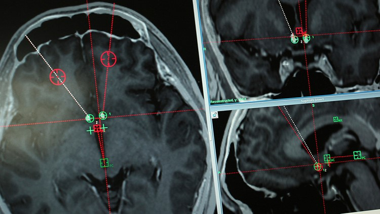 China Implants brain scans
