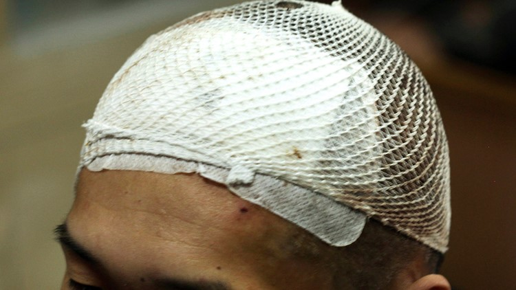 China Implants over a patient