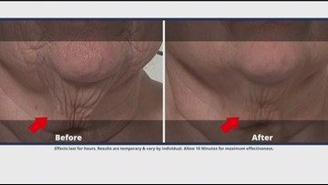 Look younger with Plexaderm