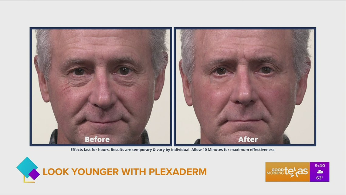 Reduce wrinkles and crow's feet with Plexaderm