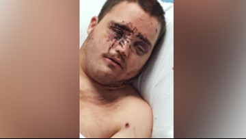He was stabbed 85 times with a screwdriver, now questions raised over safety of disabled