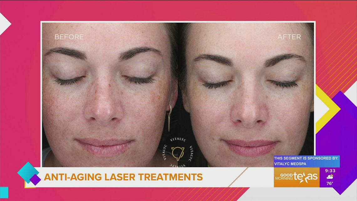Reverse the signs of aging with laser rejuvenation treatments