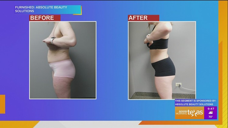 Absolute Beauty Solutions shares details about their custom body contouring