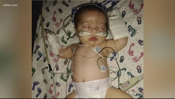 Parker County infant abused by mother's boyfriend dies
