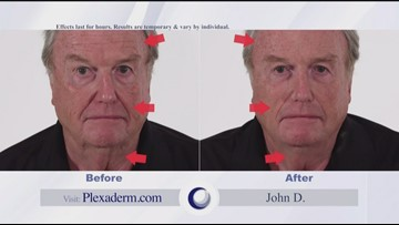 Reduce Wrinkles and Under-Eye Bags with Plexaderm