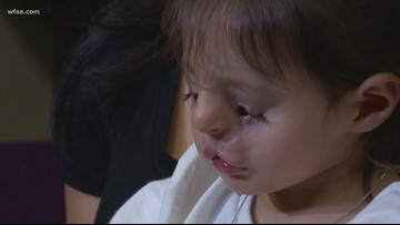 Guatemalan toddler arrives in Dallas to receive life-changing surgery