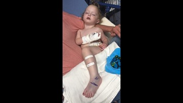 19-month-old is first snake bite victim treated at Cook Children's in 2019