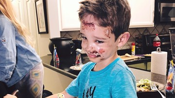 'I'm going to be okay': 6-year-old is resilient after Halloween accident
